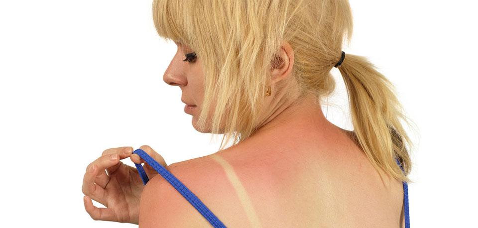 Image of women with sunburn